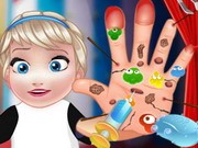 Play Baby Elsa Hand Doctor Game on FOG.COM